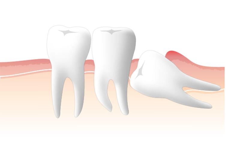 抜歯の必要性について